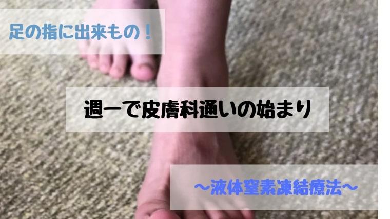 足の指にできもの!週一で皮膚科通い