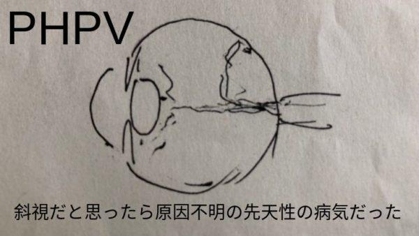 PHPV 斜視だと思ったら原因不明の先天性の病気だった
